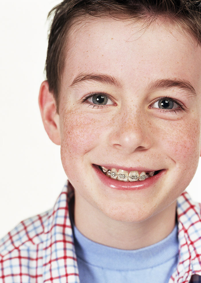 brushing tips for kids with braces
